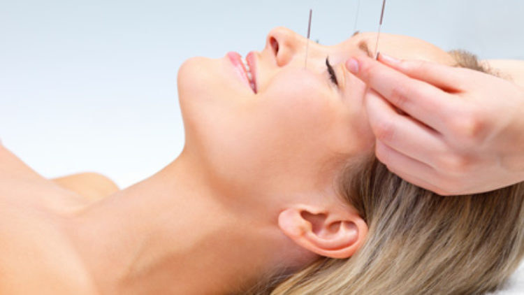 <b>Acupuncture</b>
